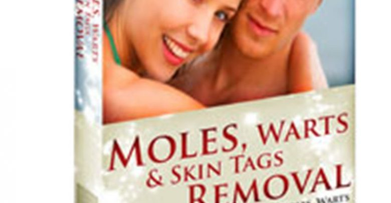 Photo of How To Remove Your Moles, Warts And Skin Tags Easily and Permanently?