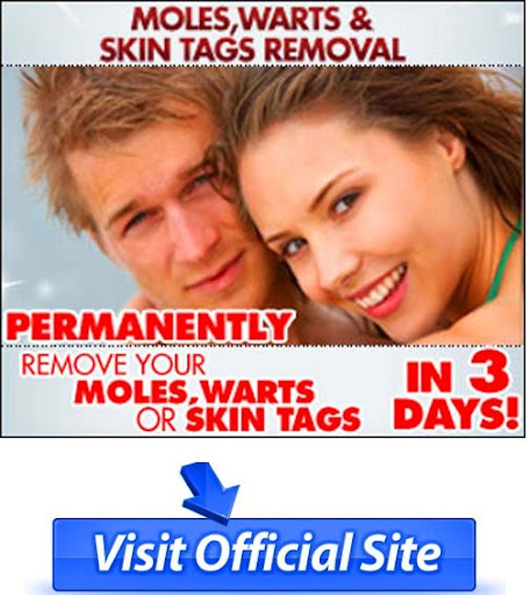 moles-warts-skin-tags-removal-review How To Remove Your Moles, Warts And Skin Tags Easily and Permanently?