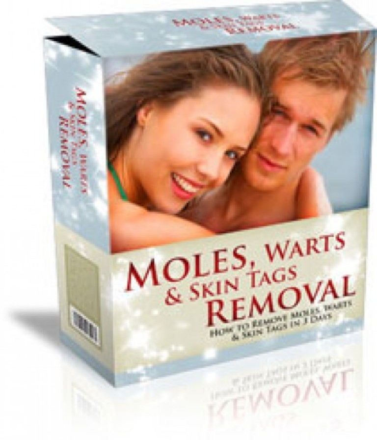 moles-warts-skin-tags-removal How To Remove Your Moles, Warts And Skin Tags Easily and Permanently?