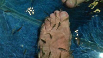 Photo of Treat Your Skin Using Garra Rufa Fish