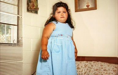 obese-child Do You Have An Obese Kid?! Lose Weight By Playing Video Games