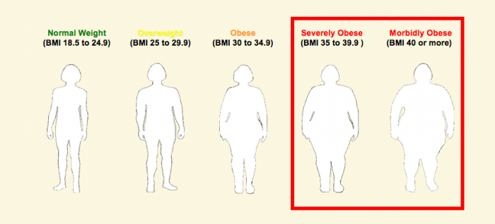 obesity Are you Overweight, Underweight, Obese or at a Normal Weight?