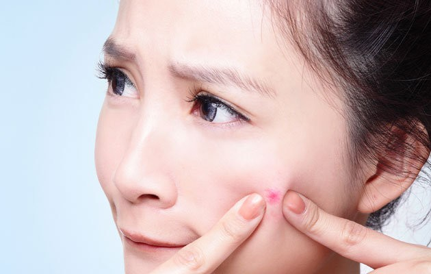 Photo of 8 Tips On How To Cure Your Acne