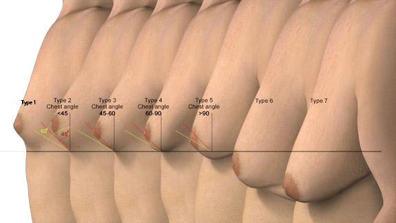 Gynecomastia-Grade-check Get Rid of Man Boobs