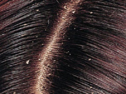 dandruff1 Learn how to prevent and treat your hair dandruff