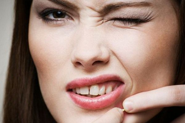 easy-ways-to-cure-acne-naturally-1214843927-jun-18-2012-600x4001 8 Tips On How To Cure Your Acne