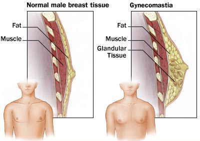 gynecomastia-diag Get Rid of Man Boobs