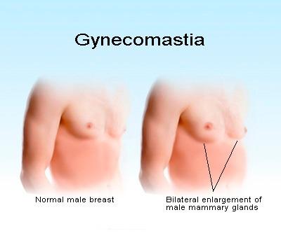 gynecomastia2 Get Rid of Man Boobs