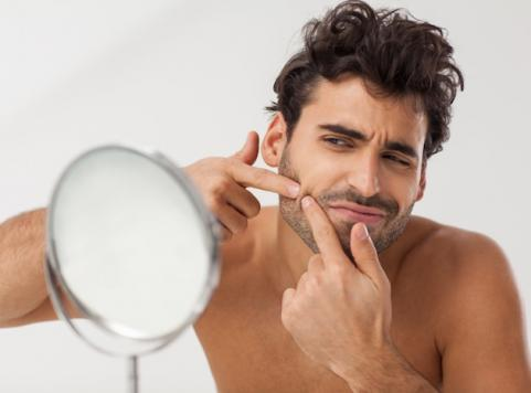 istock_000022339352small 8 Tips On How To Cure Your Acne