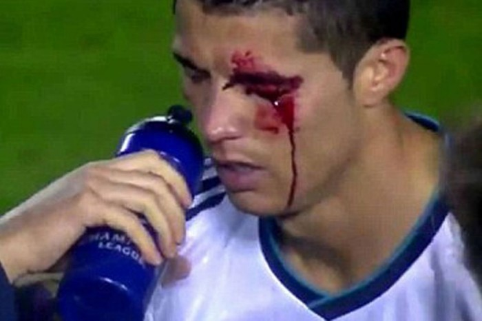 Cristiano-Ronaldos-eye-injury-1432571 Cristiano Ronaldo the Best Football Player & the Greatest of All Time