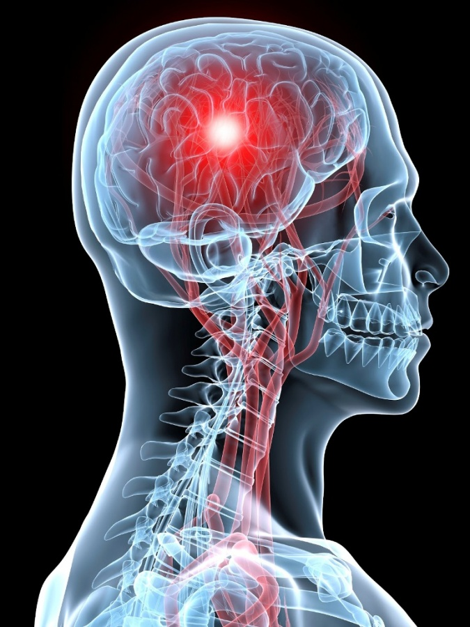 strokebrainimage What Are the Risks of Sleeping Less Than 6 Hours a Night?