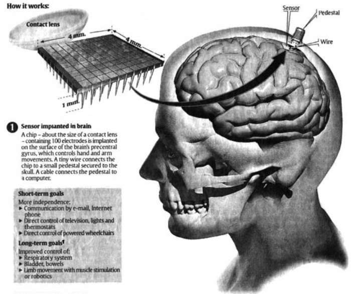 microchip-implant-on-the-brain Top 10 Biggest Weird Government Secrets that You Do Not Know
