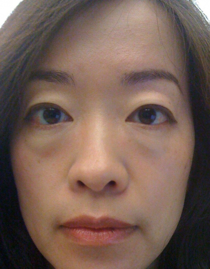 puffy-eyes-1 Do You Know The Causes Of Your Puffy Eyes?!