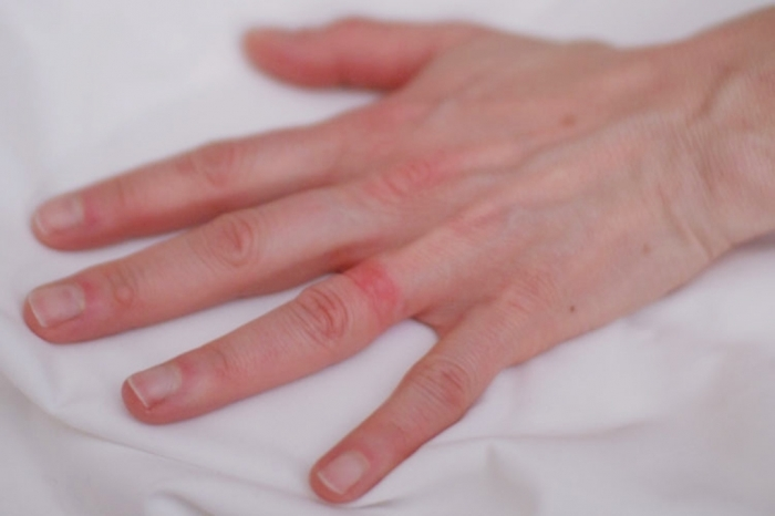 1C4262739-110421-ring_rash-hmed Easy Tricks to Remove a Tight Finger Ring