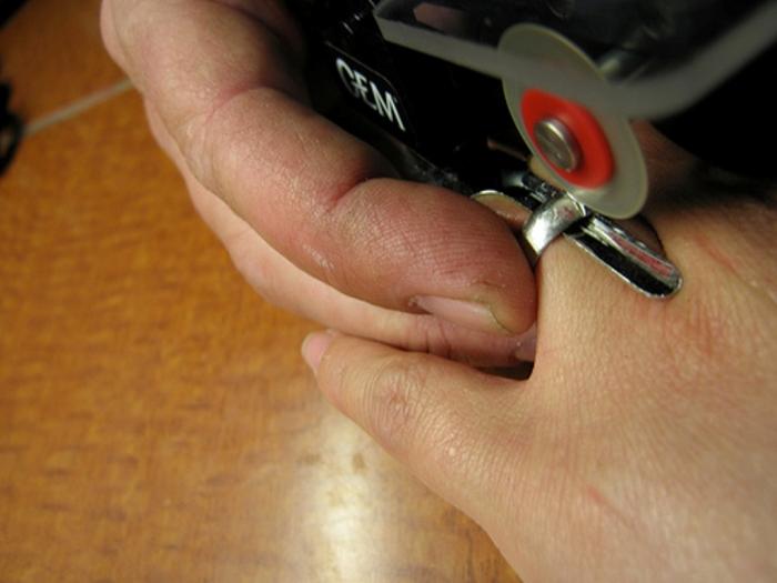 3408348206_82d4e9b5fa Easy Tricks to Remove a Tight Finger Ring