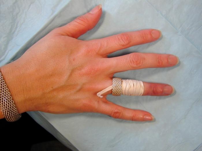 ringRem2 Easy Tricks to Remove a Tight Finger Ring