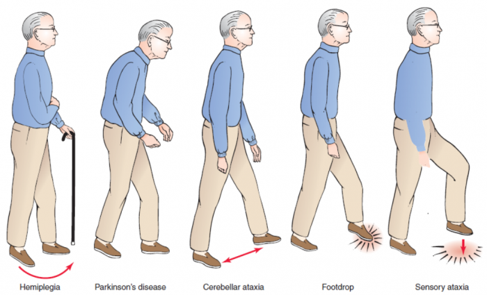 Capture How To Cure and What To Avoid in Parkinson's Disease?