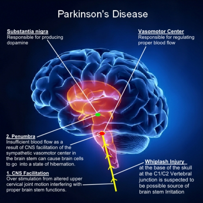 Parkinson-Illustration2 How To Cure and What To Avoid in Parkinson's Disease?