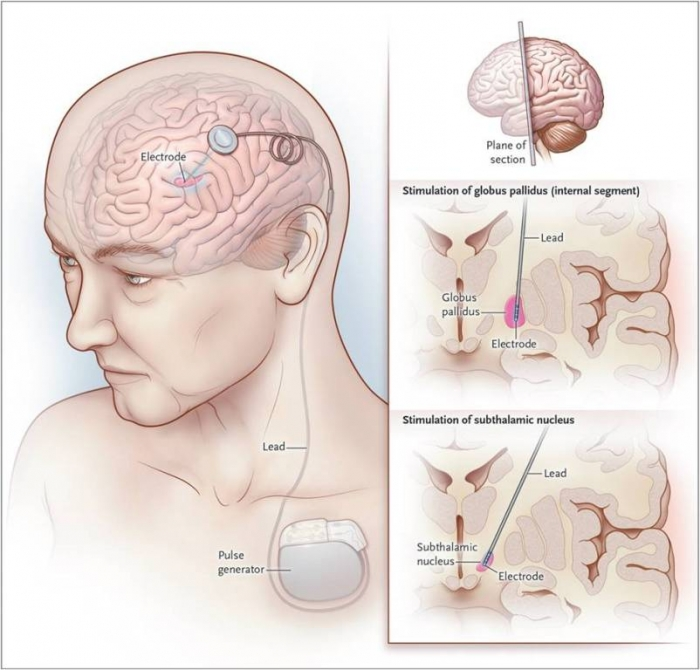 Parkinsons-Disease How To Cure and What To Avoid in Parkinson's Disease?