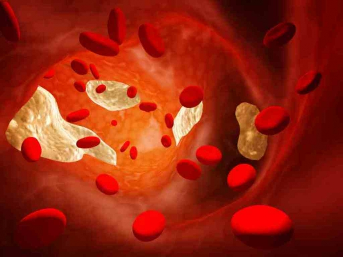 cholesterol-hdl-0-91-19429 How Can I Lower My Cholesterol?