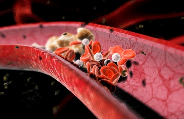 high-cholesterol-foods-3 How Can I Lower My Cholesterol?