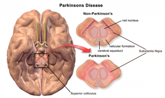 parkinsons-disease-brain-differences How To Cure and What To Avoid in Parkinson's Disease?