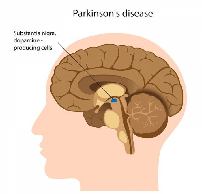 pd-brain-pic How To Cure and What To Avoid in Parkinson's Disease?