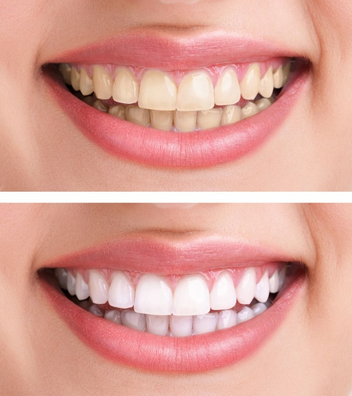 6thave1 How Can I Whiten My Teeth Easily & Naturally?