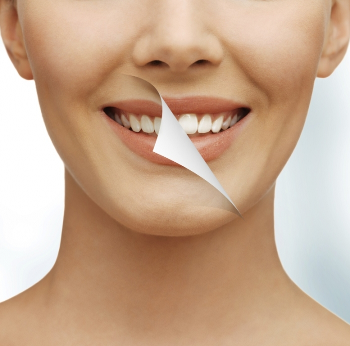 How-Can-I-Whiten-My-Teeth-Easily-Naturally1 How Can I Whiten My Teeth Easily & Naturally?