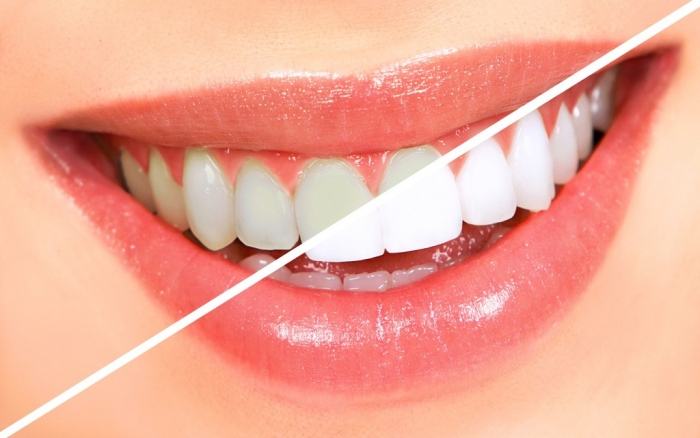 How-Can-I-Whiten-My-Teeth-Easily-Naturally2 How Can I Whiten My Teeth Easily & Naturally?