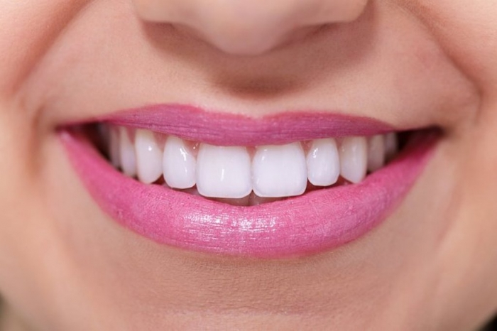 How-Can-I-Whiten-My-Teeth-Easily-Naturally3 How Can I Whiten My Teeth Easily & Naturally?