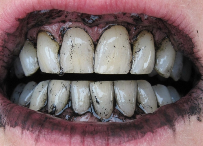 Rub-your-teeth-with-charcoal How Can I Whiten My Teeth Easily & Naturally?
