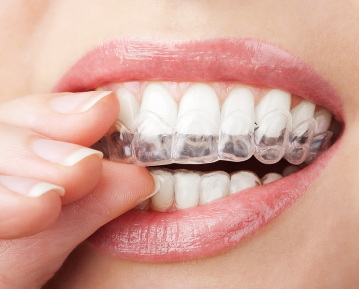 whitening-gel How Can I Whiten My Teeth Easily & Naturally?