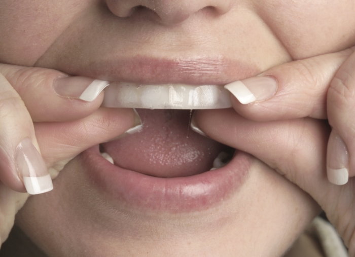 whitening-strips How Can I Whiten My Teeth Easily & Naturally?