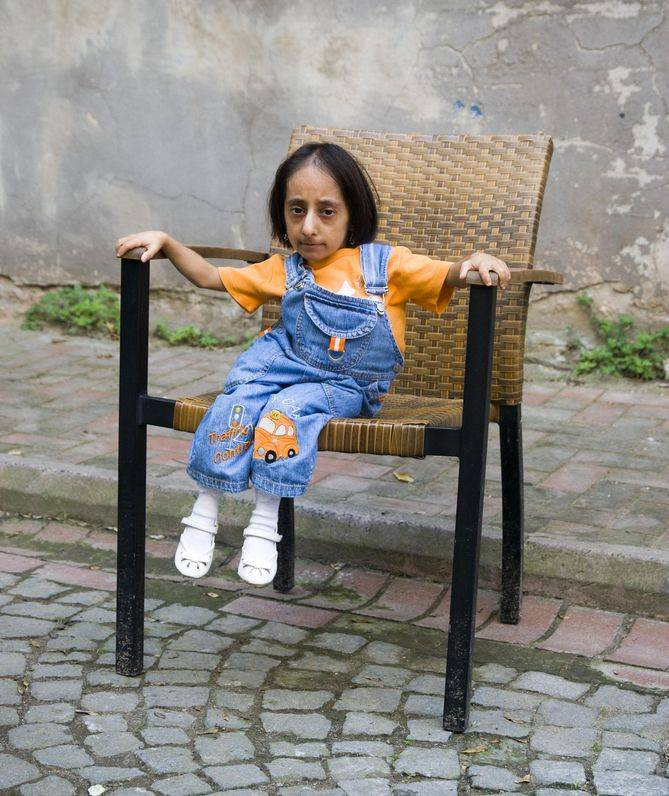0-308567-hatice_kocaman_38fb0be24e Top 10 Smallest Persons in the World