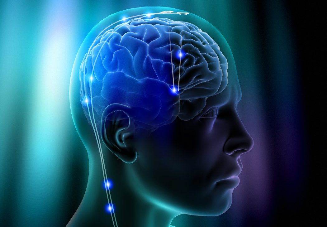DBS-depression-side300 Top 10 Hottest Topics in Brain Sciences