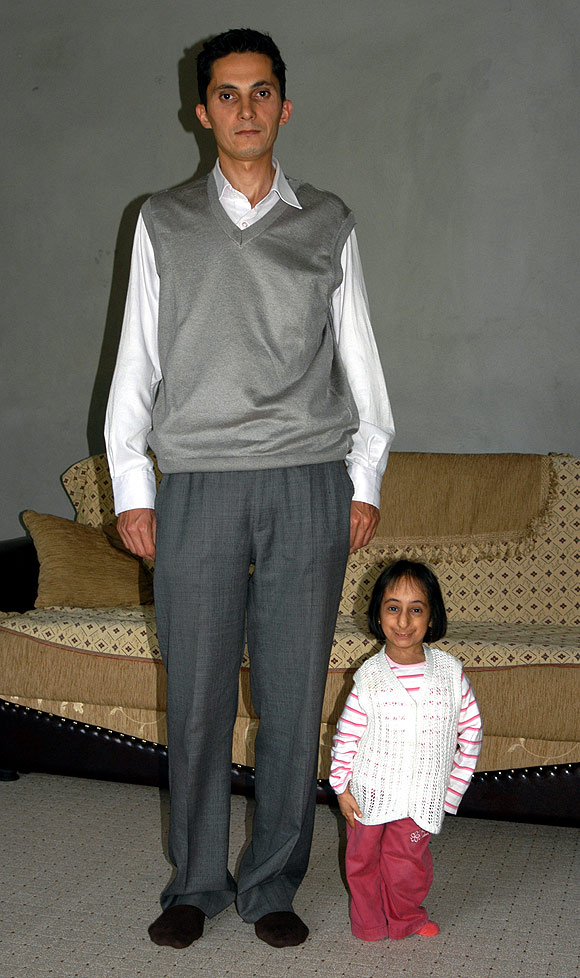 File.ashx_ Top 10 Smallest Persons in the World