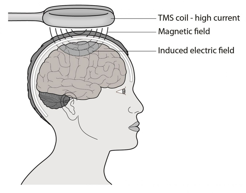 TMS Top 10 Brand New Methods for Brain Stimulation