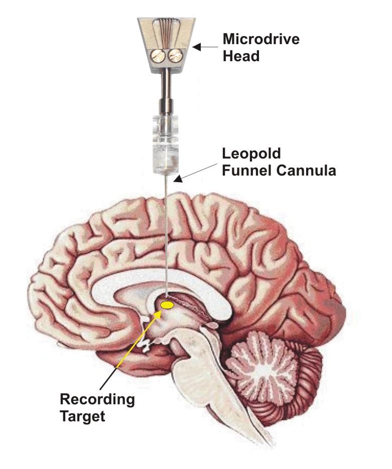figure-minimatrix-08 Top 10 Brand New Methods for Brain Stimulation