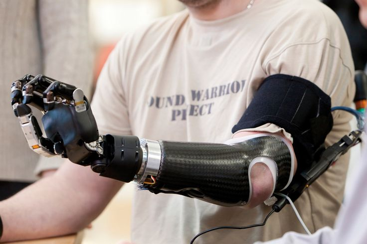 Powerful-Prosthetics The Top Trends in the Future of Healthcare