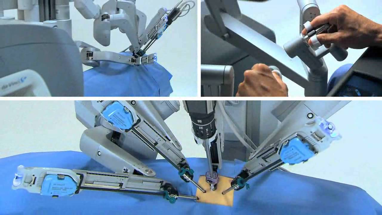 Robotic-Surgery The Top Trends in the Future of Healthcare