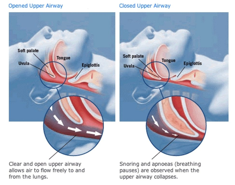 how-snoring-happens-1 How To Get Rid Of Snoring Problem Once And For All