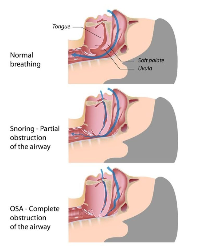 how-snoring-happens How To Get Rid Of Snoring Problem Once And For All