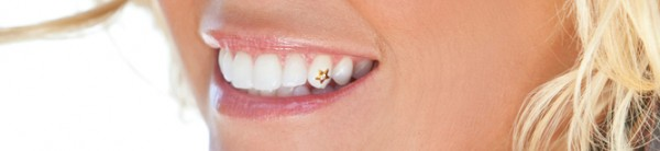 1482939602._V384284943_ 45 Amazing Teeth Jewelry Pieces For Extra Beauty