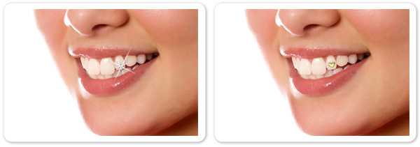 23325 45 Amazing Teeth Jewelry Pieces For Extra Beauty