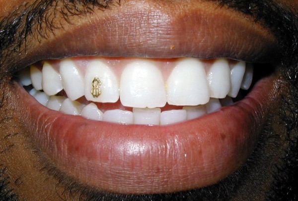 Dollarsign 45 Amazing Teeth Jewelry Pieces For Extra Beauty