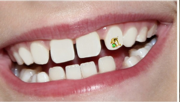 Lilly_dolphin 45 Amazing Teeth Jewelry Pieces For Extra Beauty