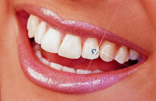 diamand-zuby_int 45 Amazing Teeth Jewelry Pieces For Extra Beauty
