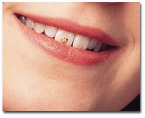 smile-1 45 Amazing Teeth Jewelry Pieces For Extra Beauty