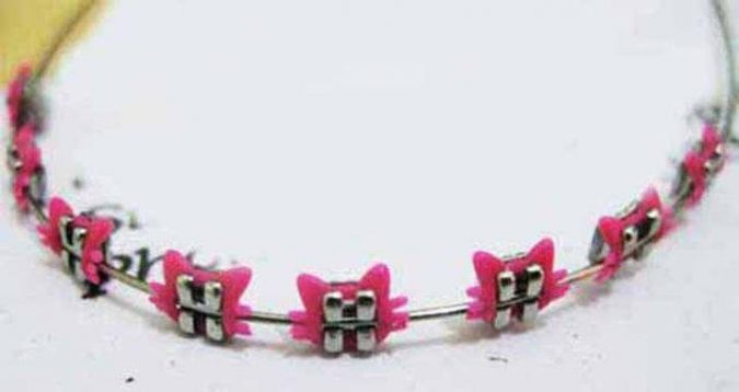Braces-Design-675x358 9 Unusual «Hello Kitty» Products!